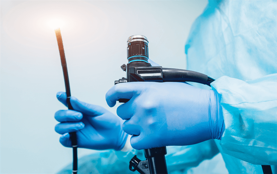 Endoskopi Nedir, Nasıl Yapılır, Çeşitleri Nelerdir?