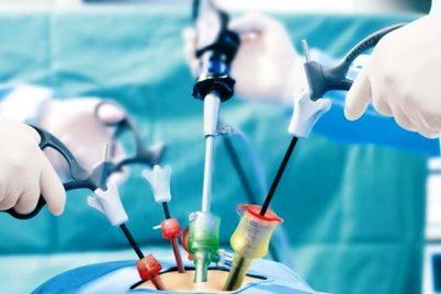 Laparoskopik Cerrahi Nedir? Avantajları Nelerdir?